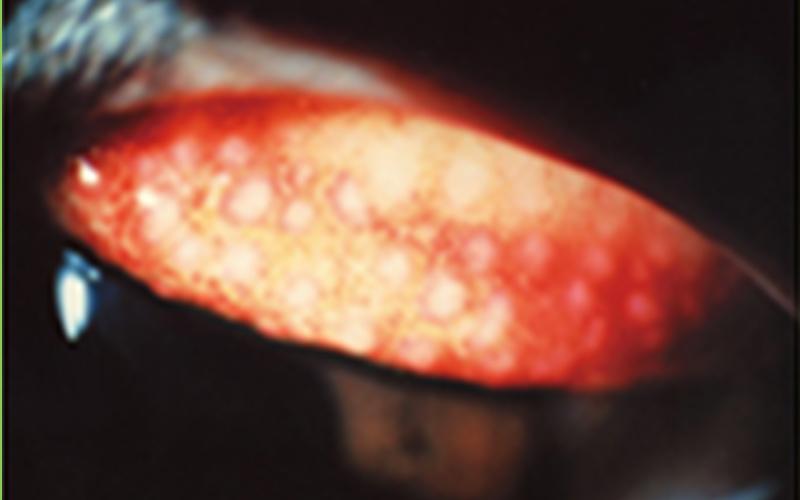 汚れの付着したコンタクト装用が原因で発症した巨大乳頭結膜炎